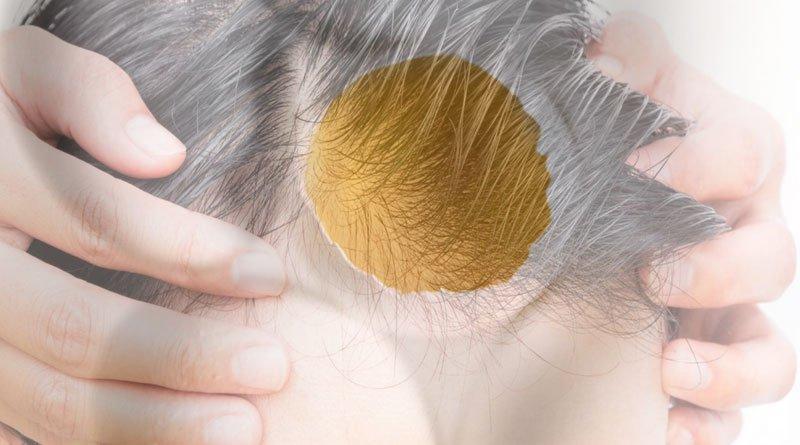 metodi bizzarri perdita capelli
